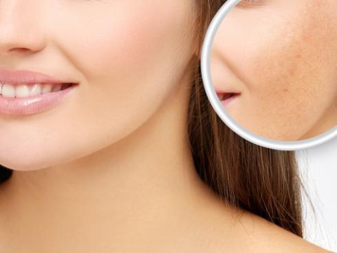 3 formas de evitar las manchas en la piel