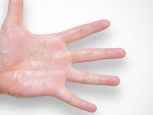 Cómo eliminar el sudor en las manos
