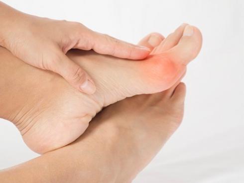 Consejos para aliviar los dolores en los juanetes