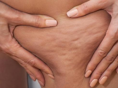 El aceite de abedul es ideal para deshacerte de la celulitis