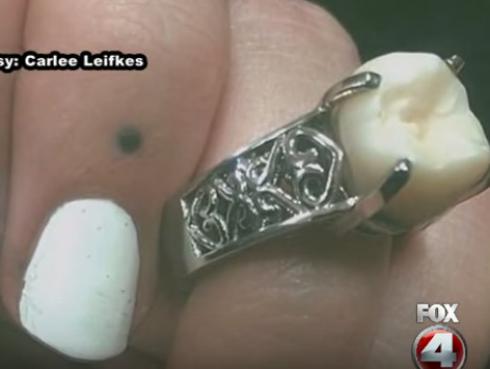 Joven usó parte de su cuerpo para crear el anillo de compromiso de su novia