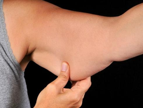 Consejos para reducir la flacidez y lucir un cuerpo de envidia