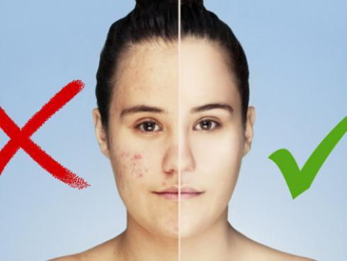 Mascarilla dulce para eliminar el acné y sus marcas