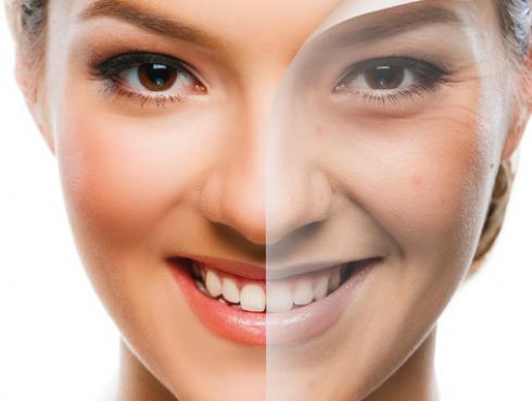 Peeling casero para piel sensible