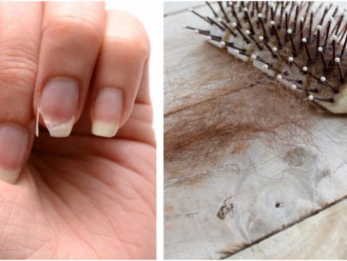 Remedio casero para las uñas quebradizas y la caída de cabello