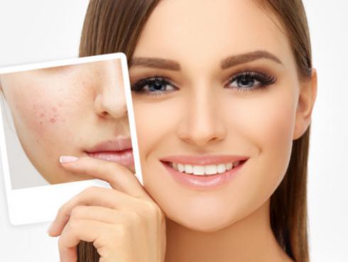 Secreto para eliminar las marcas del acné