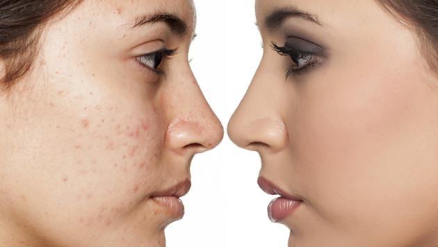 8 tips de maquillaje para pieles con acné