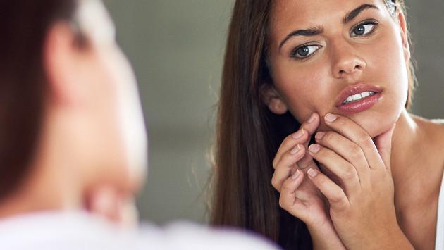 Vitaminas que combaten el acné