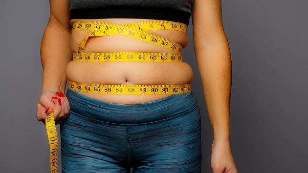 Factores que llevan a la obesidad