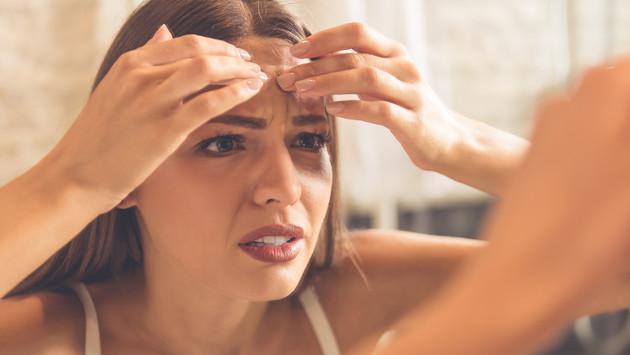 Cómo eliminar las marcas de acné en tu piel
