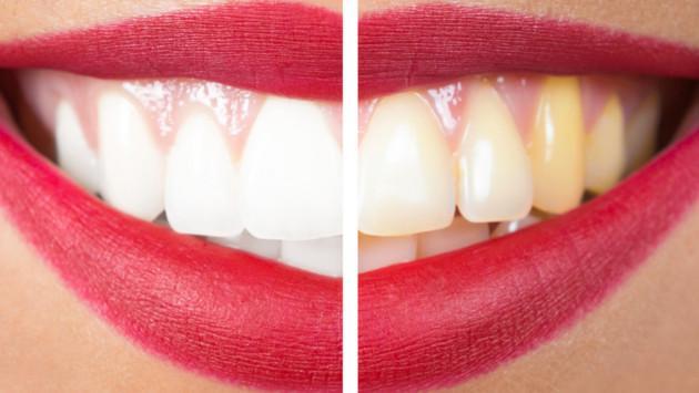 Cómo quitar las manchas amarillas en los dientes