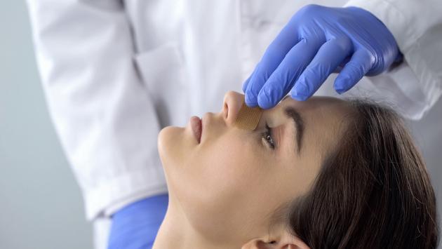 Cuidados para tu nariz después de una rinoplastia