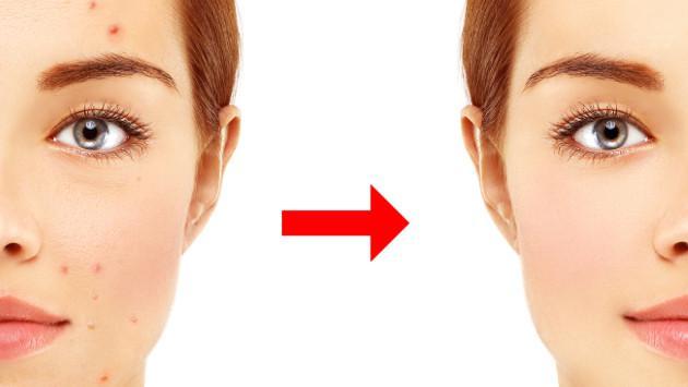 Elimina el acné usando papaya