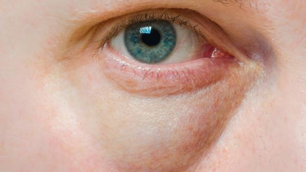 ¡Elimina las bolsas de los ojos y ojeras con este sencillo secreto!