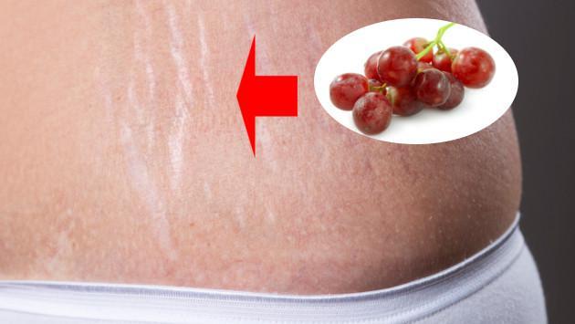 Elimina las estrías usando uvas