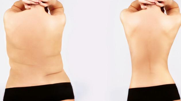 ¡Elimina los rollitos de la espalda!