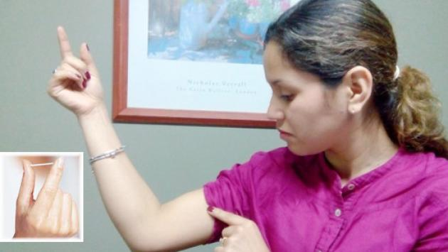 Implante anticonceptivo llegó al Perú de manera gratuita