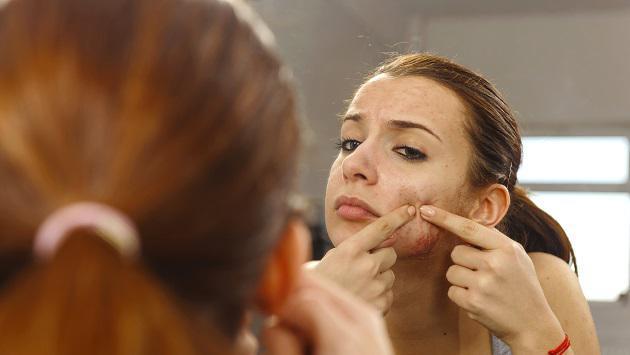 ¿Marcas de acné? ¡Elimínalas con estos remedios!