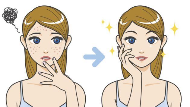 Mascarilla natural para eliminar las marcas del acné en tu rostro
