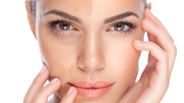 Mascarilla para eliminar las manchas de la piel