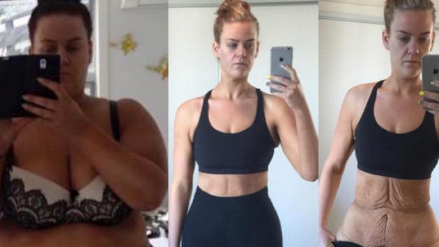 Mujer publica increíbles fotografías luego de perder 90 kilos
