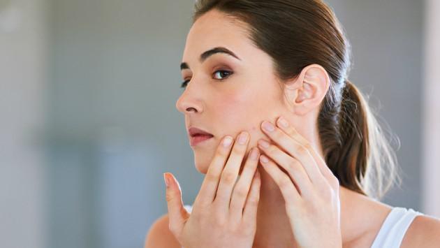 Hábitos que pueden provocarte acné