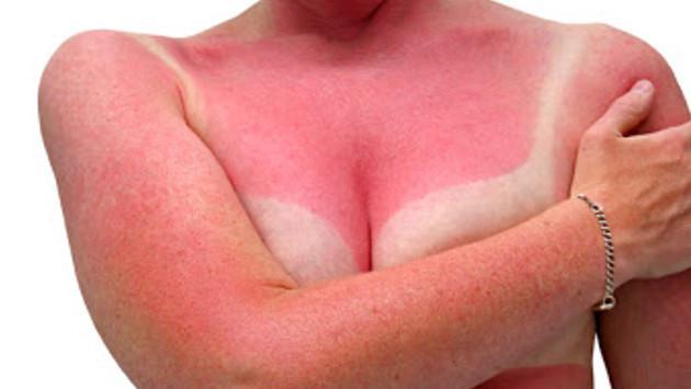 Conoce las zonas del cuerpo más sensibles al sol