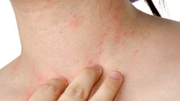 ¿Qué es la psoriasis? Te contamos más sobre esta enfermedad