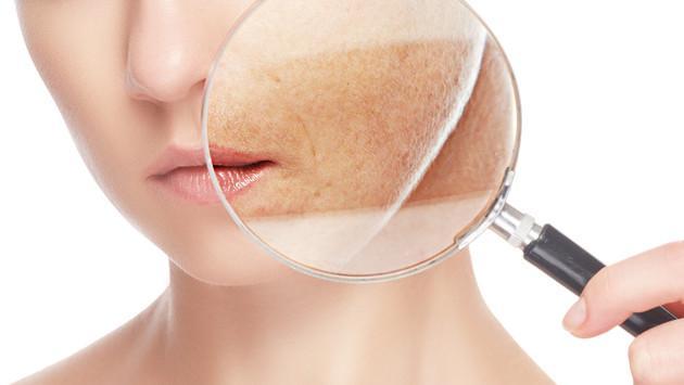 Remedios caseros para eliminar las manchas en la piel