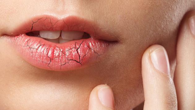 Remedios caseros para los labios partidos