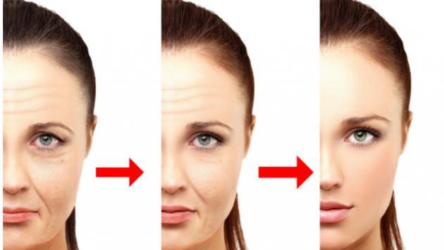 Suaviza las arrugas profundas y evita su pronunciamiento