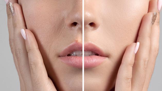Tips para cerrar los poros dilatados