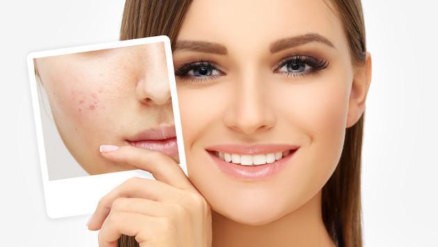 Tratamiento casero para eliminar las marcas del acné