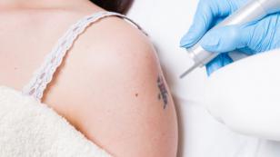 El tatuaje biomédico y sus beneficios para la piel