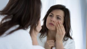 Mirodexia, la enfermedad de las mujeres que no aceptan su edad