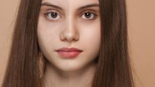 Truco para eliminar las secuelas del acné