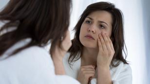Consejos para evitar las bolsas y ojeras en tus ojos