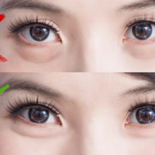 Truco para reducir los ojos hinchados