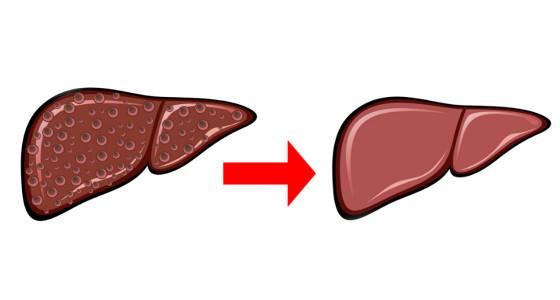 Infusión casera  para limpiar y depurar el hígado