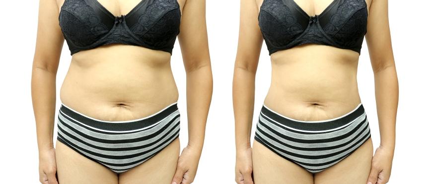 Piña para bajar de peso y recuperar tu cintura