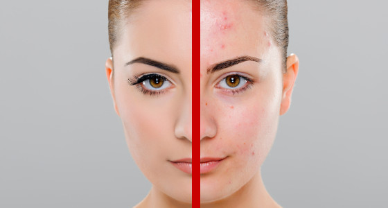 Palillo para combatir el acné, atenuar manchas y prevenir el envejecimiento