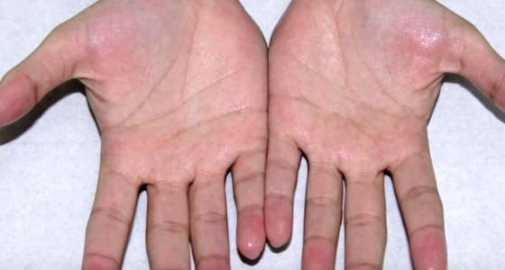 Truco para eliminar el sudor de las manos
