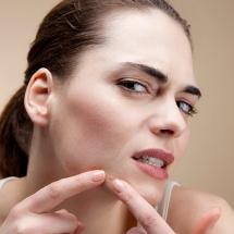 3 tips sensacionales para prevenir manchas de acné en el rostro.