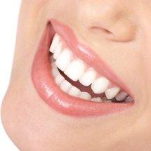 Trucos caseros para eliminar las manchas de los dientes.
